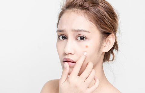 vitamin b12 acne