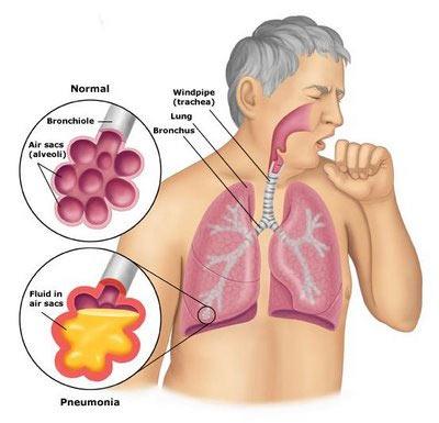 Pneumonia, What is pneumonia?, symptoms of Pneumonia ...